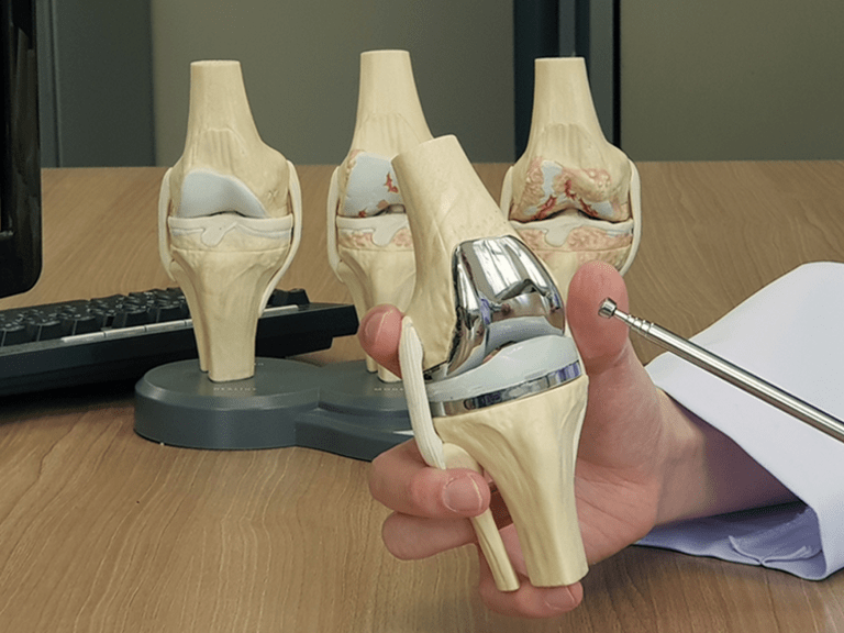 Teaser image of model of a knee replacement